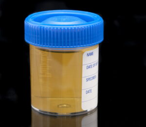 urine test specimen