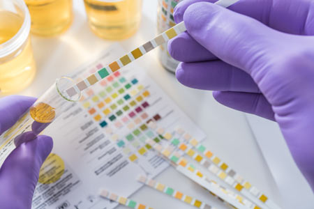urine drug test in lab
